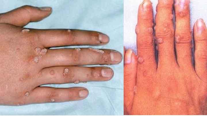 Bệnh hạt cơm: căn nguyên, triệu chứng, chẩn đoán