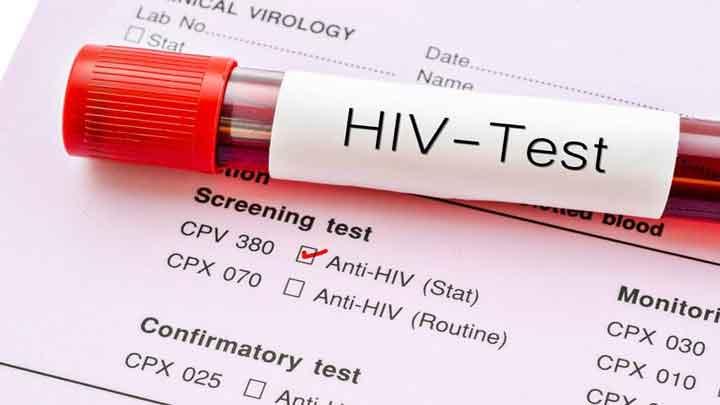 Bệnh HIV / AIDS: triệu chứng, lây truyền và những rủi ro