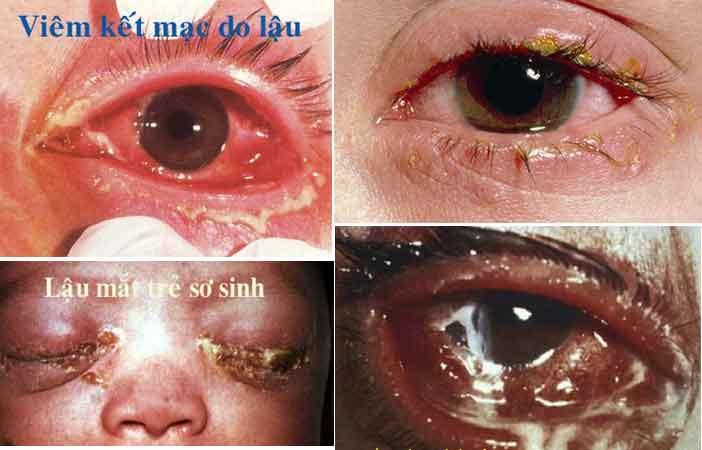 Bệnh lậu ở mắt biểu hiện thế nào? hình ảnh, nhận biết & điều trị