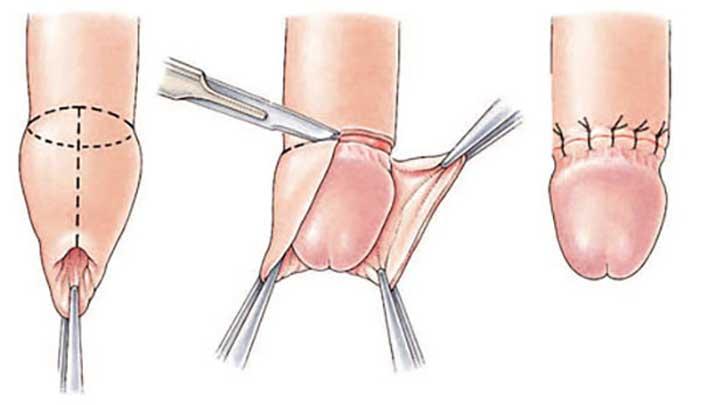 Cắt bao quy đầu: chỉ định, lợi ích, rủi ro và quy trình cắt
