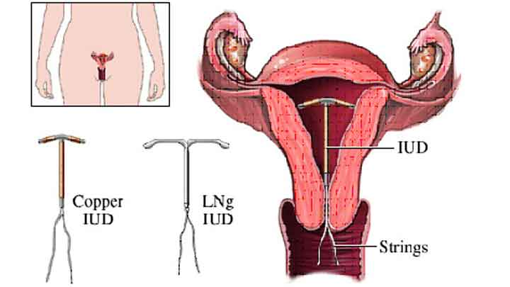 dụng cụ tử cung