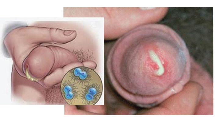 Dương vật chảy mủ là gì? chẩn đoán bệnh gây chảy mủ dương vật