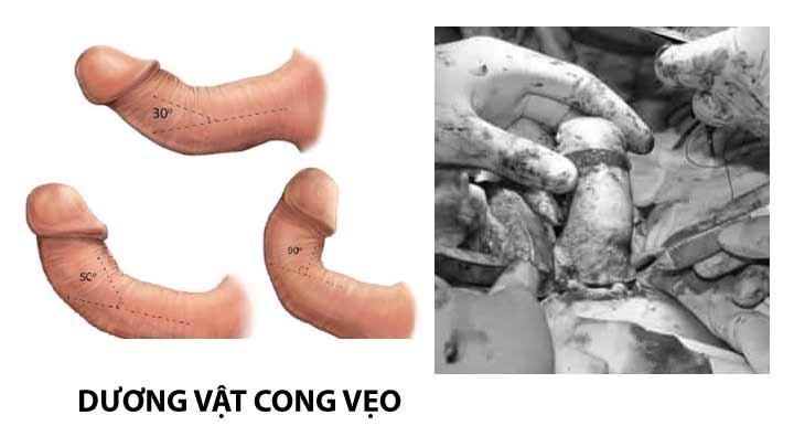 Dương vật cong vẹo: nguyên nhân, biểu hiện bệnh & cách điều trị