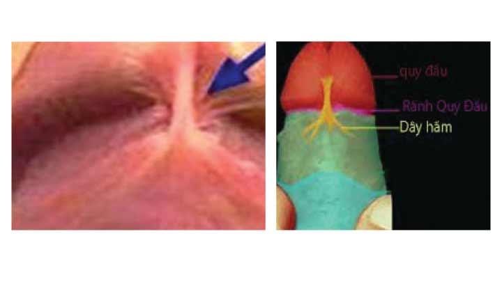 Đứt dây hãm dương vật có triệu chứng gì & cách xử trí ra sao?