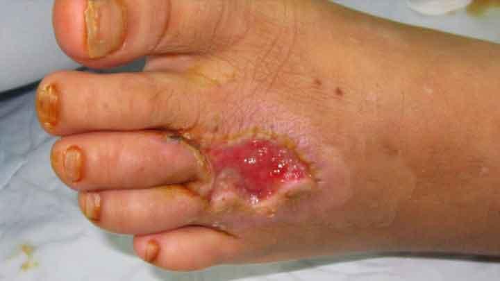 Nhiễm trùng là gì? tất cả những điều người bệnh cần biết