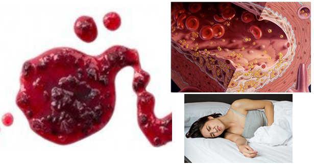 Rong kinh - Rong huyết: triệu chứng, chẩn đoán & điều trị