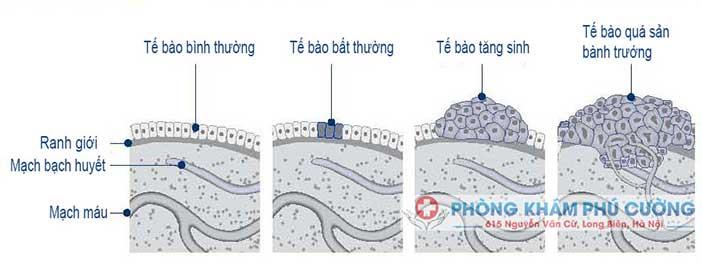 Tăng sinh tế bào sùi mào gà bởi các protein sớm của HPV thế nào?
