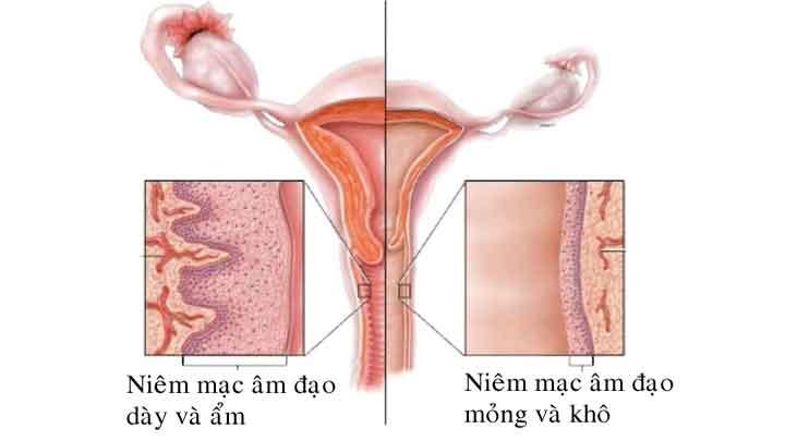 Teo âm đạo: nguyên nhân, triệu chứng, chẩn đoán và điều trị