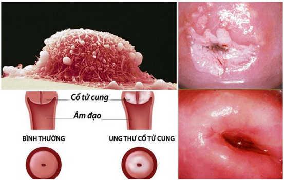 Tổn thương tiền ung thư do sùi mào gà là gì? câu hỏi thường gặp