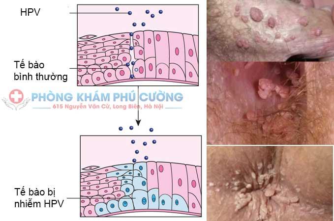 Type HPV gây sùi mào gà là type nào? chẩn đoán và điều trị