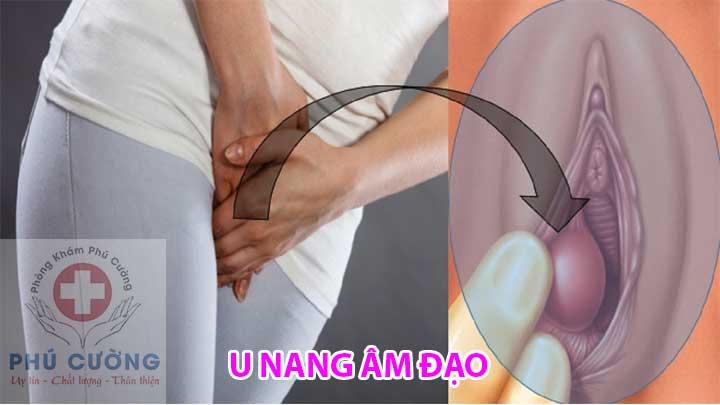 U nang âm đạo: phân loại, triệu chứng, chẩn đoán và điều trị