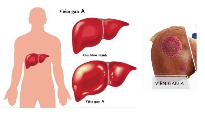 Viêm gan A là gì? đường lây truyền, chẩn đoán và cách điều trị