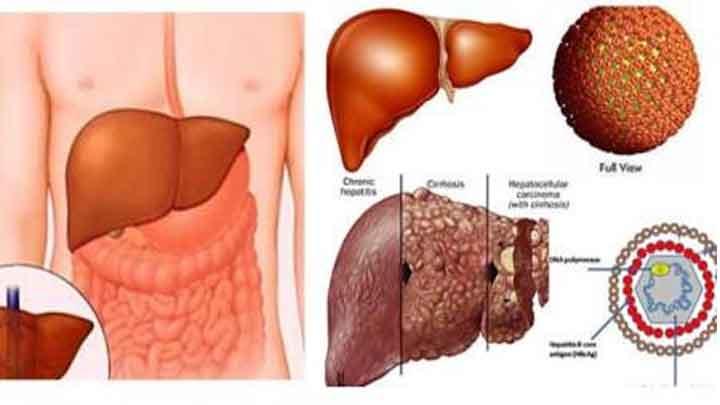 Viêm gan B có triệu chứng như thế nào? cách chẩn đoán & điều trị