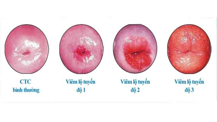 Viêm lộ tuyến cổ tử cung: tất cả những gì bạn cần biết