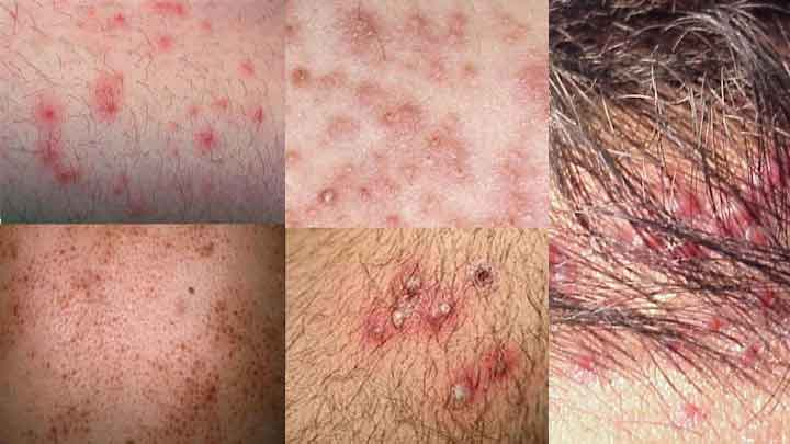 Viêm nang lông: nguyên nhân, triệu chứng, chẩn đoán và điều trị